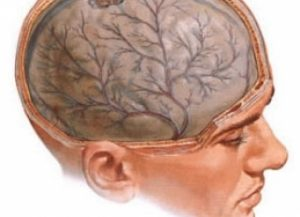 массаж при энцефалопатии пожилому мужчине